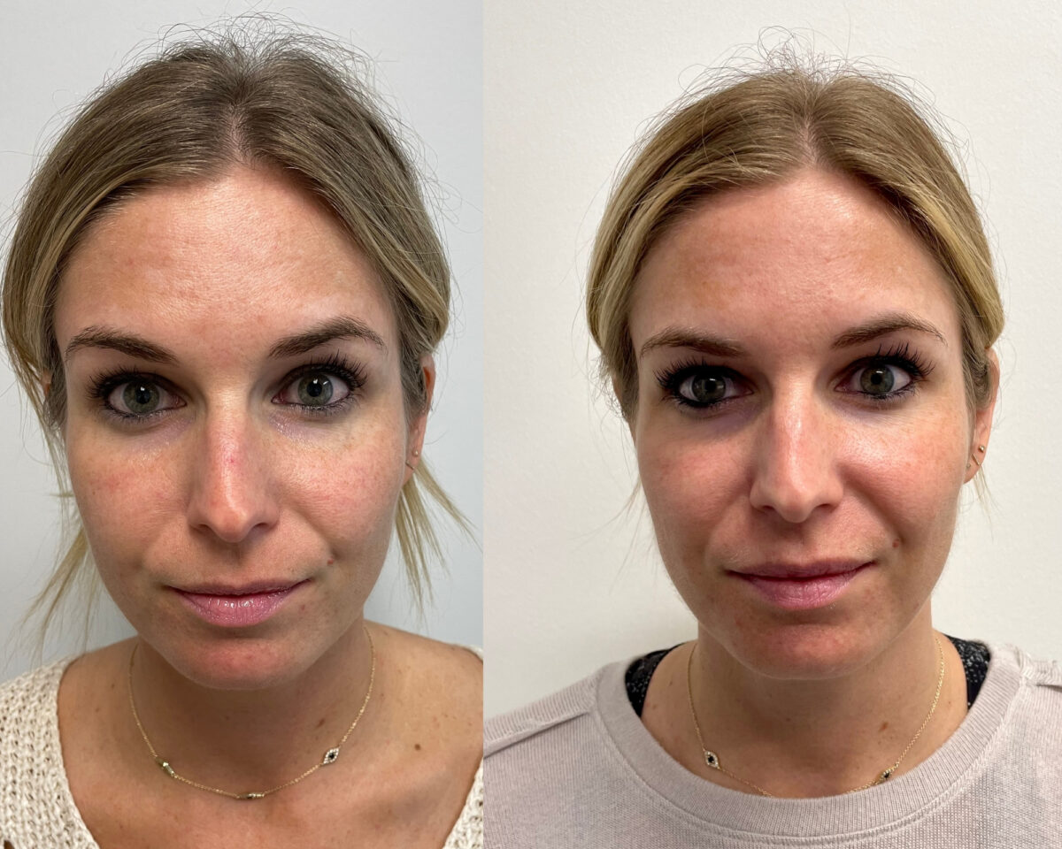 before and after of a woman's face after her Melasma Treatment