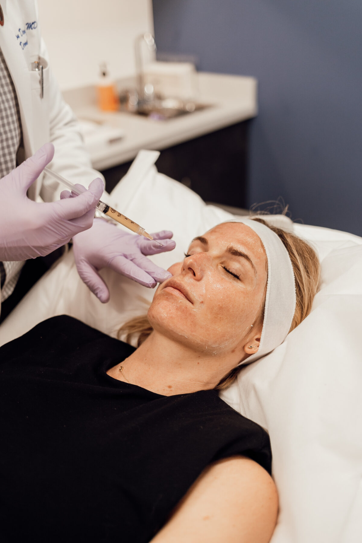 Melasma Treatment on a woman by injecting the treatment on her face